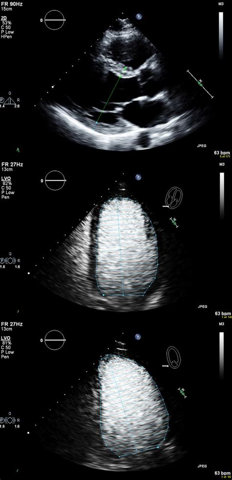Classification of left ventricular size: diameter or